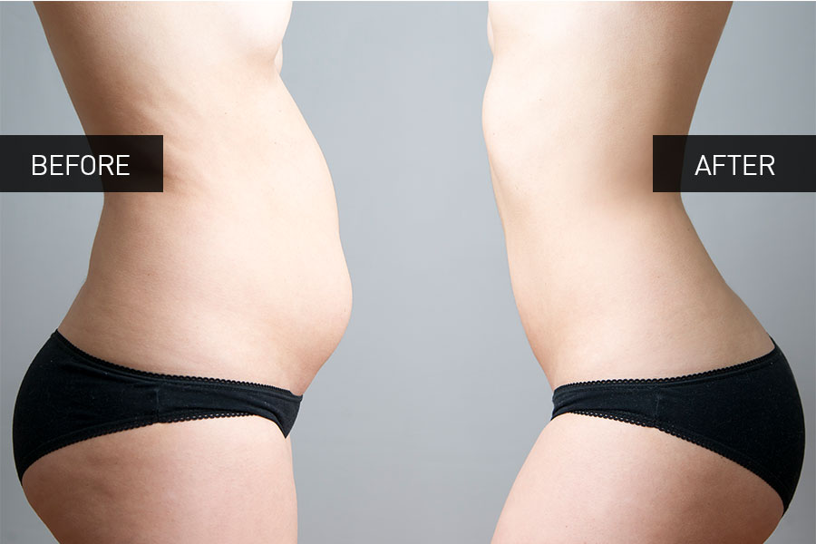celludrain_before_after_endermology