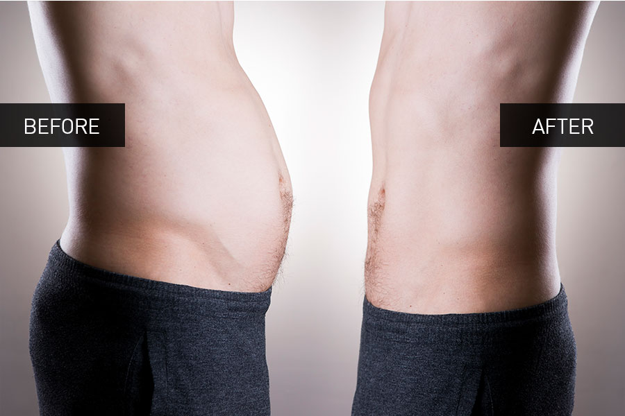 dermedics_before_after_slimming